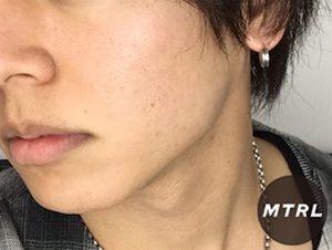 【仰天チェンジ!?】24歳男性が1ヶ月間、顔の半分だけスキンケアをしてみたら!?