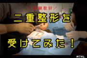 【タイガモンスター】二重整形手術を受けてきた!
