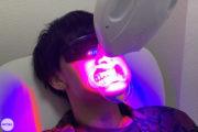 目指せ爽やかな白い歯!セルフホワイトニングを体験してきた!